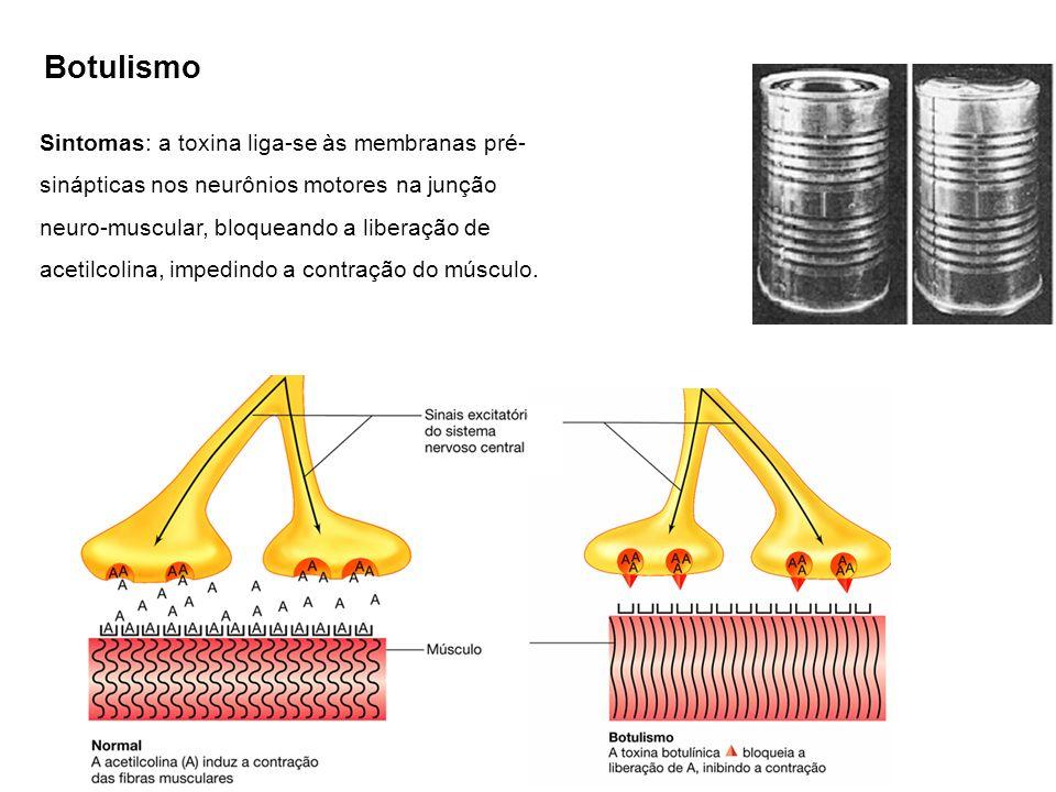 Botulismo Sintomas: a toxina liga-se às membranas pré- sinápticas nos neurônios motores na junção neuro-muscular, bloqueando a liberação de acetilcolina, impedindo a contração do músculo.