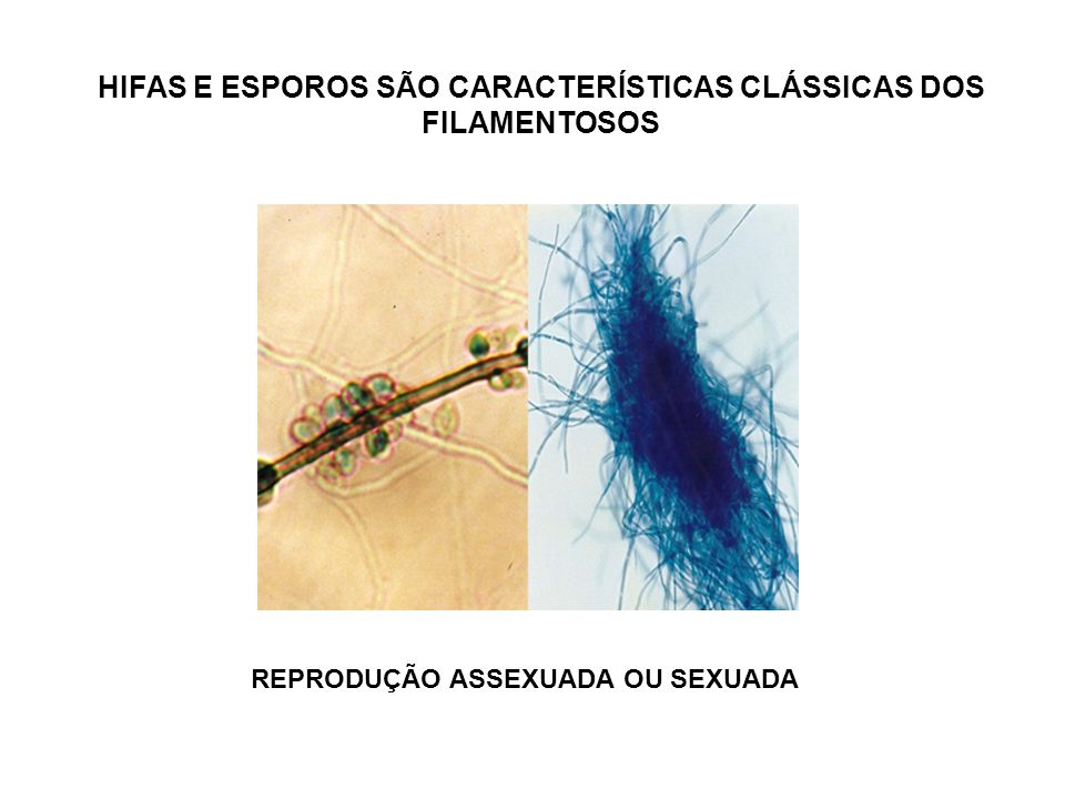 Histoplasma capsulatum Fezes de morcegos, pneumonia nodular Histoplasmose disseminada