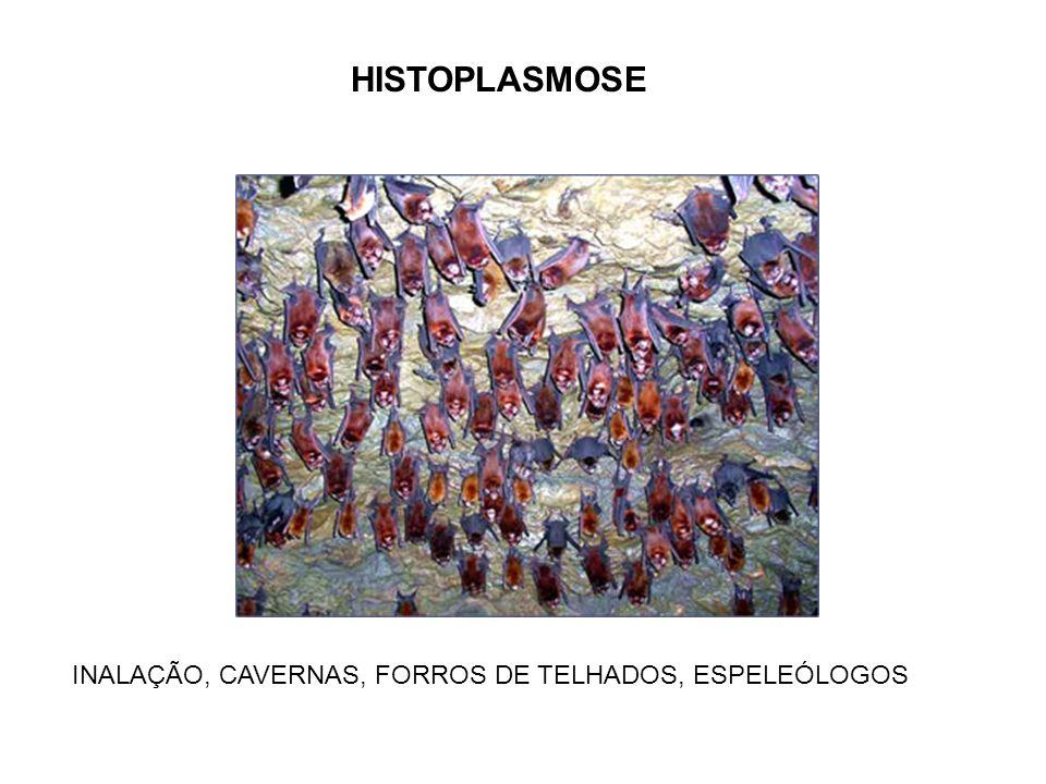 HISTOPLASMOSE INALAÇÃO, CAVERNAS, FORROS DE TELHADOS, ESPELEÓLOGOS