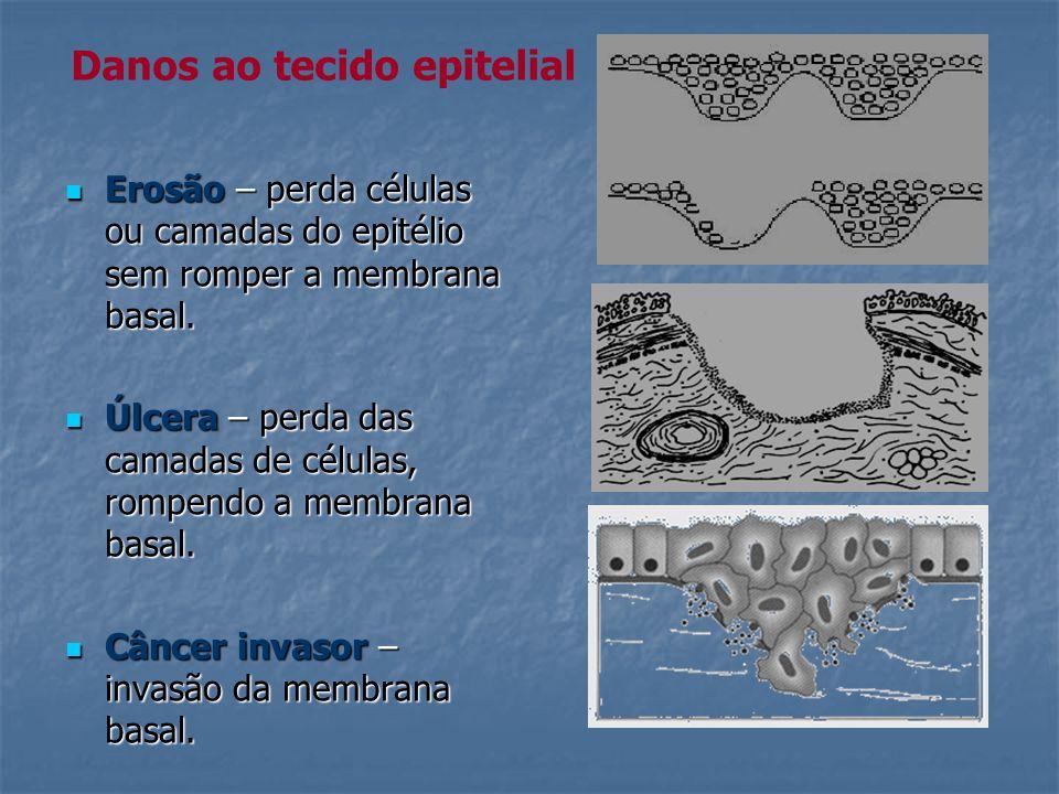 Erosão – perda células ou camadas do epitélio sem romper a membrana basal. Erosão – perda células ou camadas do epitélio sem romper a membrana basal.