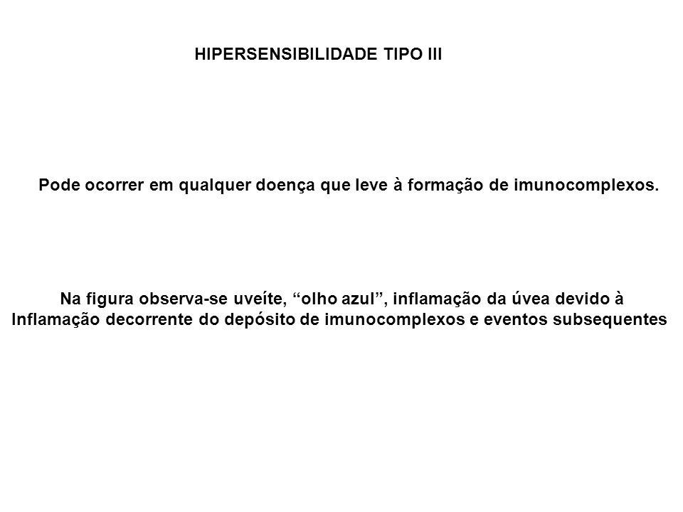 HIPERSENSIBILIDADE TIPO III Pode ocorrer em qualquer doença que leve à formação de imunocomplexos. Na figura observa-se uveíte, olho azul, inflamação