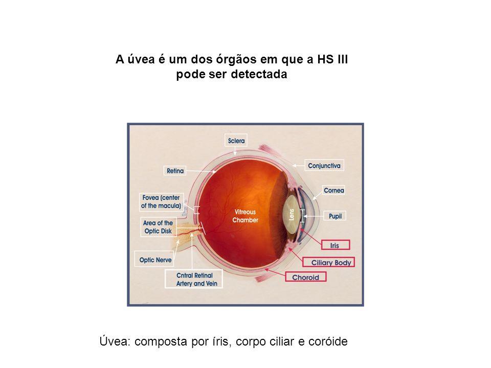 A úvea é um dos órgãos em que a HS III pode ser detectada Úvea: composta por íris, corpo ciliar e coróide