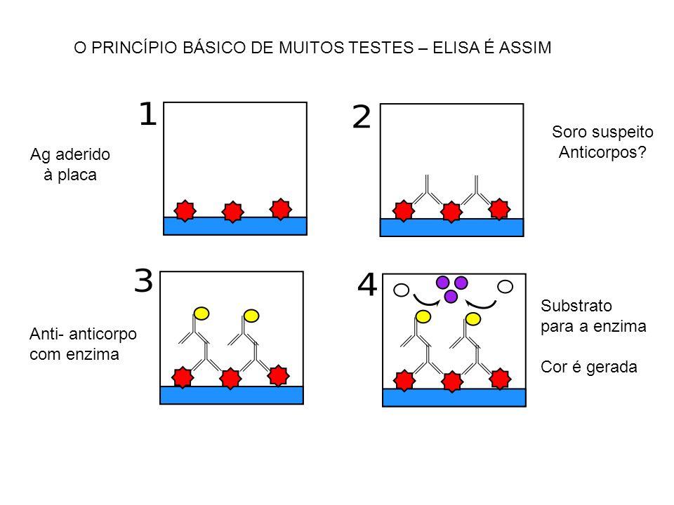 O PRINCÍPIO BÁSICO DE MUITOS TESTES – ELISA É ASSIM Ag aderido à placa Soro suspeito Anticorpos? Anti- anticorpo com enzima Substrato para a enzima Co