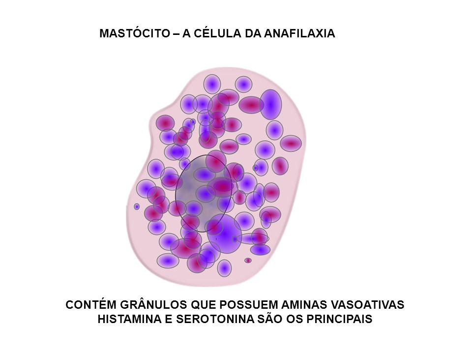 HIPERSENSIBILIDADE TIPO III Pode ocorrer em qualquer doença que leve à formação de imunocomplexos.