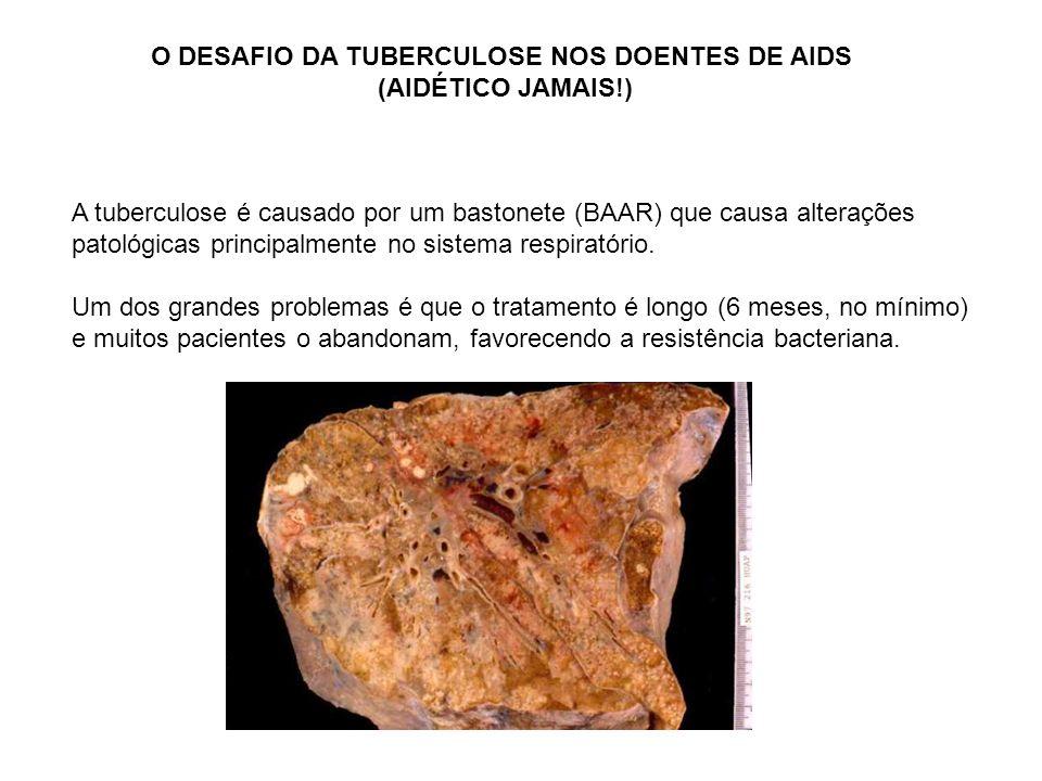 O DESAFIO DA TUBERCULOSE NOS DOENTES DE AIDS (AIDÉTICO JAMAIS!) A tuberculose é causado por um bastonete (BAAR) que causa alterações patológicas princ