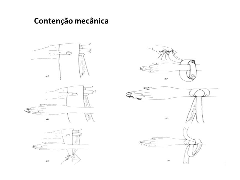 Contenção mecânica