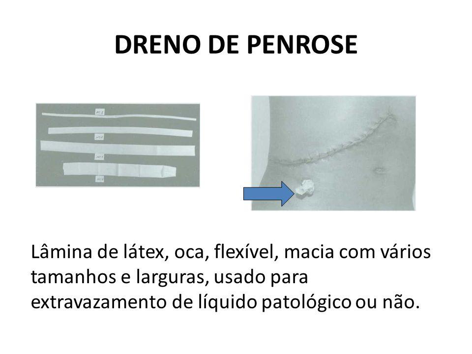 DRENO DE PENROSE Lâmina de látex, oca, flexível, macia com vários tamanhos e larguras, usado para extravazamento de líquido patológico ou não.