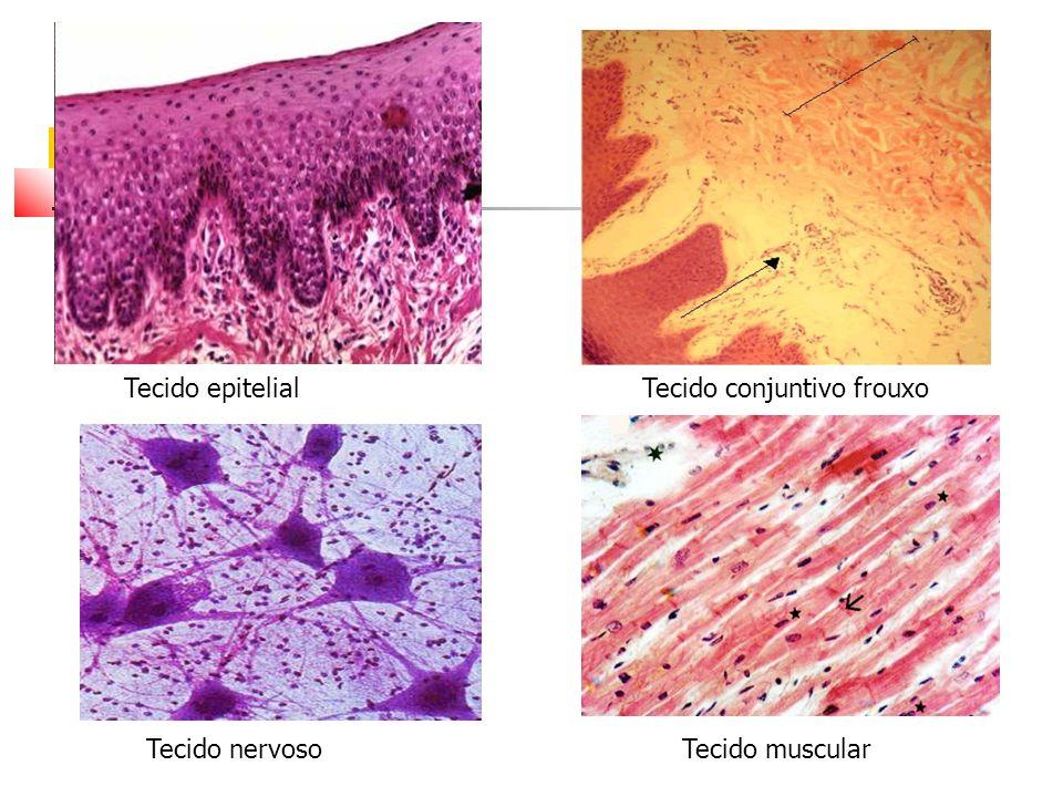Tecido epitelialTecido conjuntivo frouxo Tecido nervosoTecido muscular