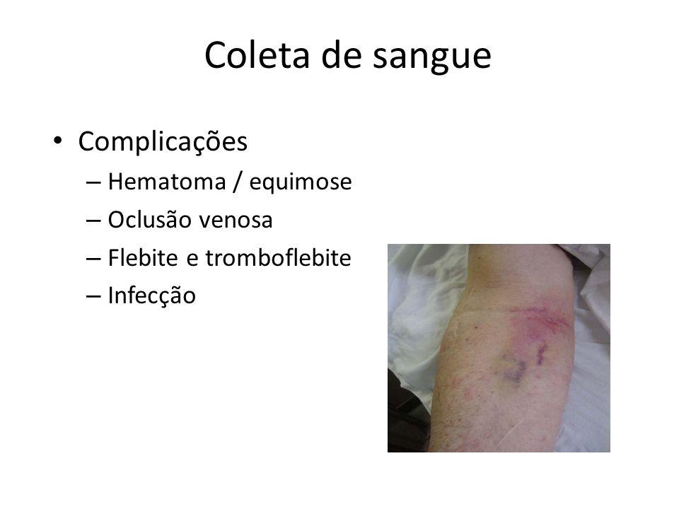 Coleta de sangue Complicações – Hematoma / equimose – Oclusão venosa – Flebite e tromboflebite – Infecção
