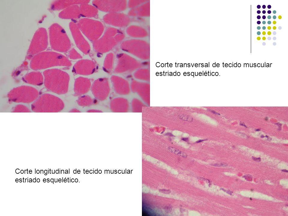 Corte transversal de tecido muscular estriado esquelético. Corte longitudinal de tecido muscular estriado esquelético.