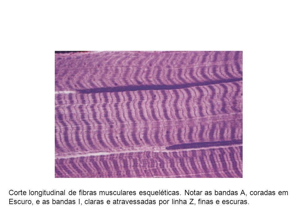 Corte longitudinal de fibras musculares esqueléticas. Notar as bandas A, coradas em Escuro, e as bandas I, claras e atravessadas por linha Z, finas e
