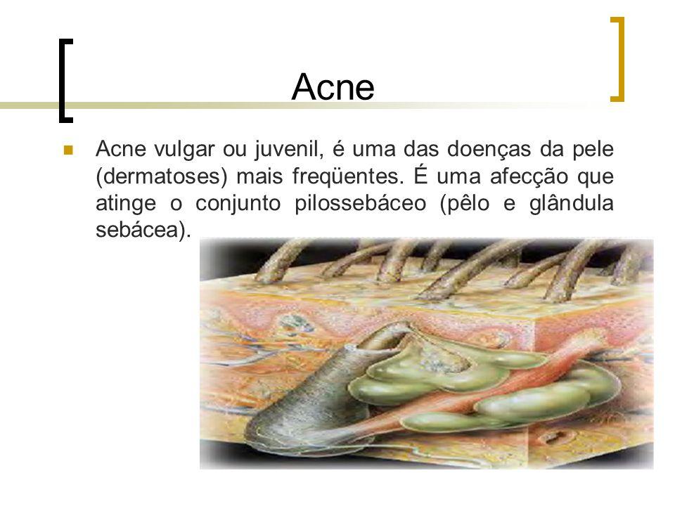 Acne Acne vulgar ou juvenil, é uma das doenças da pele (dermatoses) mais freqüentes. É uma afecção que atinge o conjunto pilossebáceo (pêlo e glândula