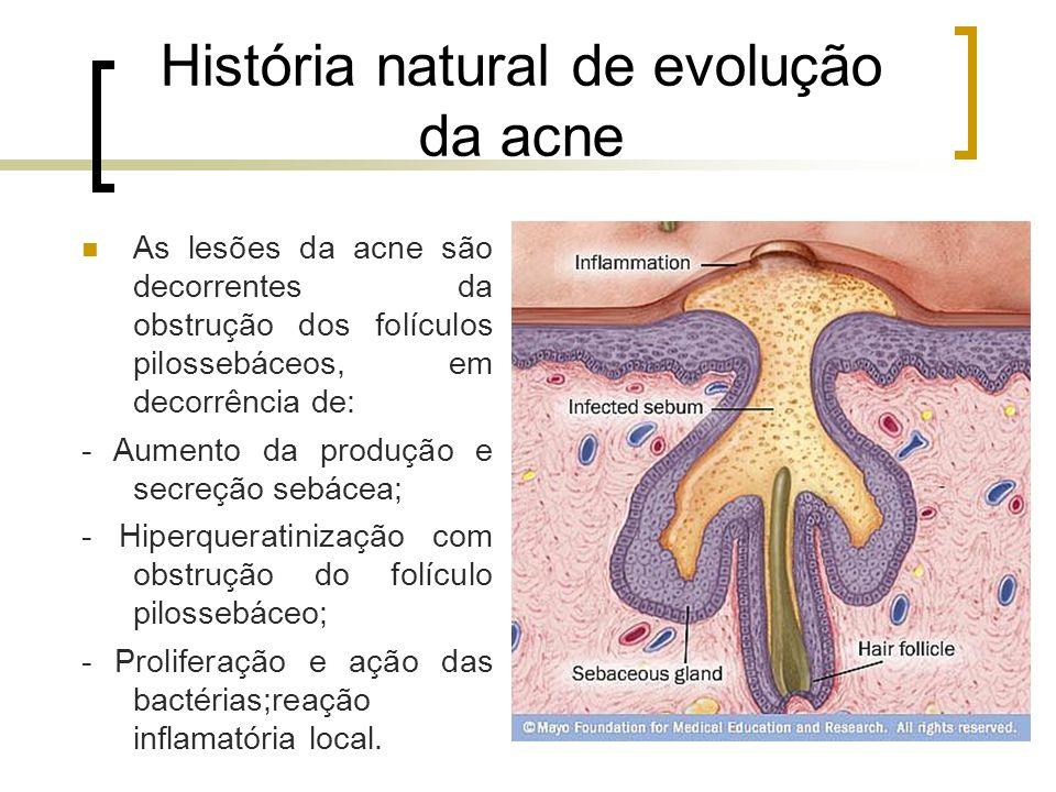 História natural de evolução da acne As lesões da acne são decorrentes da obstrução dos folículos pilossebáceos, em decorrência de: - Aumento da produ