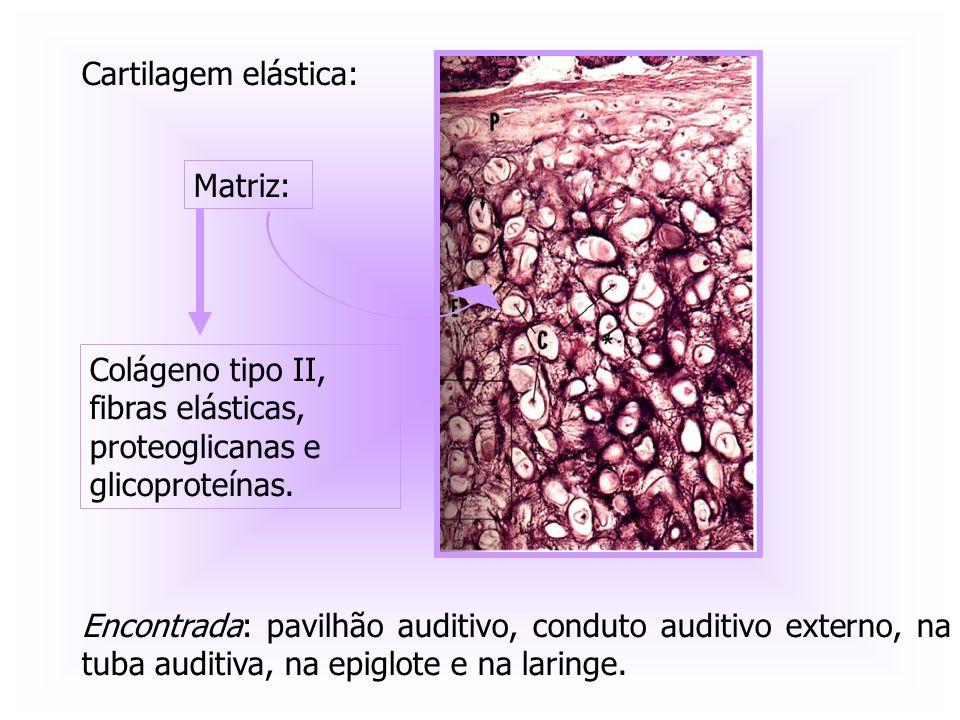 Cartilagem elástica: Encontrada: pavilhão auditivo, conduto auditivo externo, na tuba auditiva, na epiglote e na laringe. Matriz: Colágeno tipo II, fi