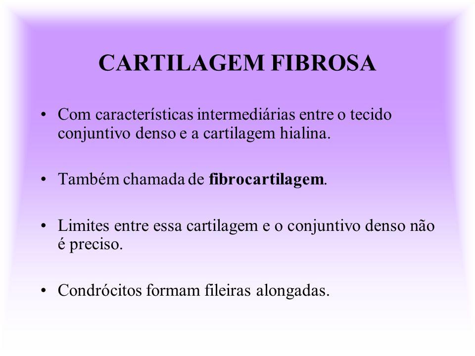 CARTILAGEM FIBROSA Com características intermediárias entre o tecido conjuntivo denso e a cartilagem hialina. Também chamada de fibrocartilagem. Limit