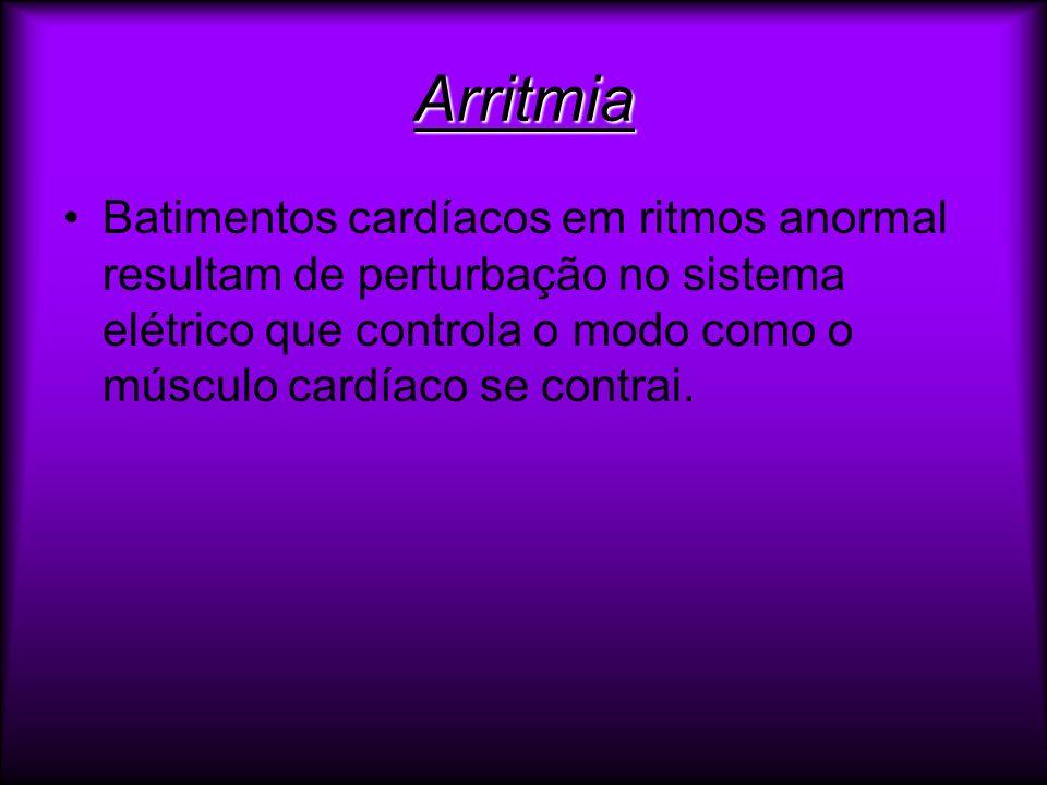 Arritmia Batimentos cardíacos em ritmos anormal resultam de perturbação no sistema elétrico que controla o modo como o músculo cardíaco se contrai.