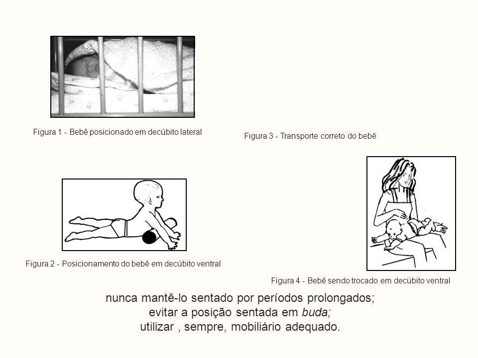 Figura 1 - Bebê posicionado em decúbito lateral Figura 2 - Posicionamento do bebê em decúbito ventral nunca mantê-lo sentado por períodos prolongados;