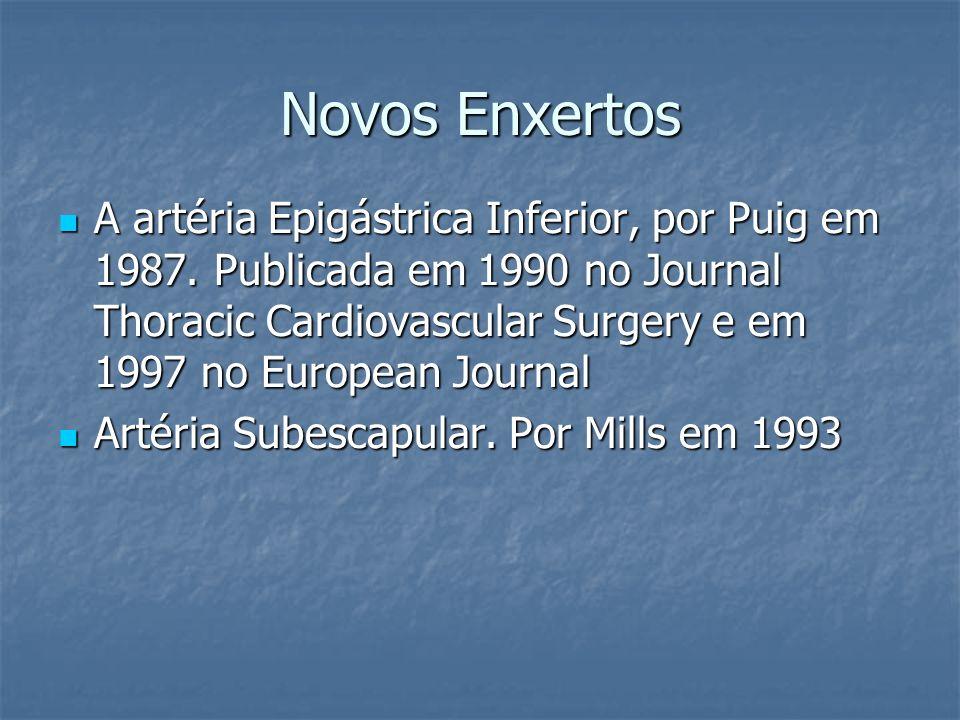 Novos Enxertos A artéria Epigástrica Inferior, por Puig em 1987. Publicada em 1990 no Journal Thoracic Cardiovascular Surgery e em 1997 no European Jo