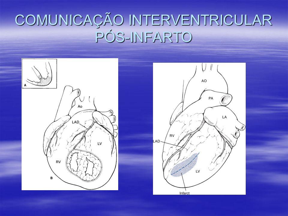 COMUNICAÇÃO INTERVENTRICULAR PÓS-INFARTO