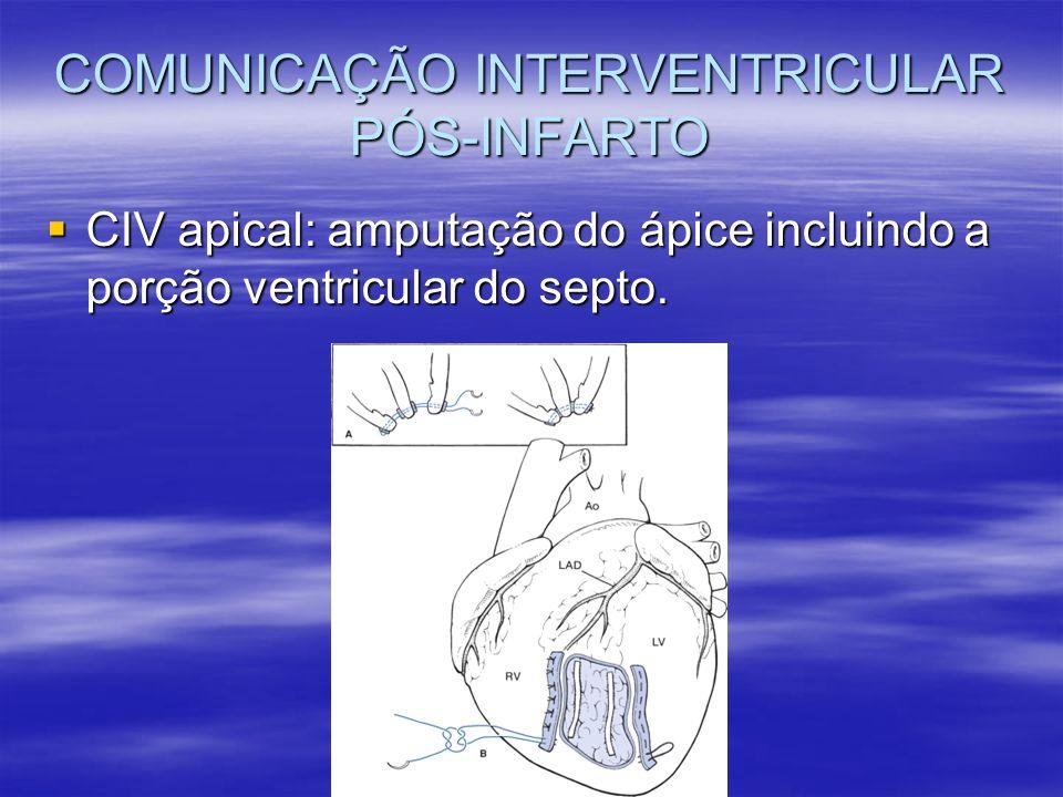 CIV apical: amputação do ápice incluindo a porção ventricular do septo. CIV apical: amputação do ápice incluindo a porção ventricular do septo.