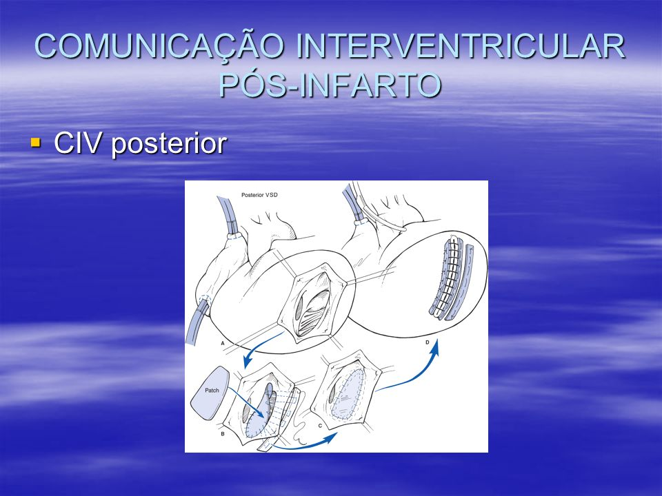 COMUNICAÇÃO INTERVENTRICULAR PÓS-INFARTO CIV posterior CIV posterior