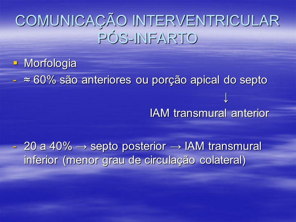 COMUNICAÇÃO INTERVENTRICULAR PÓS-INFARTO Morfologia Morfologia - 60% são anteriores ou porção apical do septo IAM transmural anterior IAM transmural a