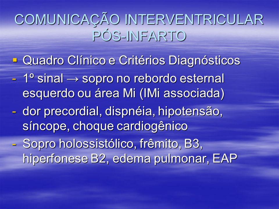 COMUNICAÇÃO INTERVENTRICULAR PÓS-INFARTO Quadro Clínico e Critérios Diagnósticos Quadro Clínico e Critérios Diagnósticos -1º sinal sopro no rebordo es