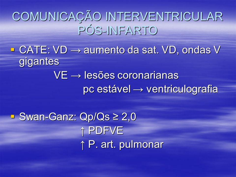 COMUNICAÇÃO INTERVENTRICULAR PÓS-INFARTO CATE: VD aumento da sat. VD, ondas V gigantes CATE: VD aumento da sat. VD, ondas V gigantes VE lesões coronar