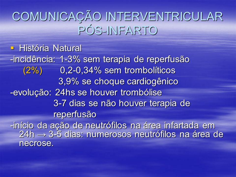 COMUNICAÇÃO INTERVENTRICULAR PÓS-INFARTO História Natural História Natural -incidência: 1-3% sem terapia de reperfusão (2%) 0,2-0,34% sem trombolítico