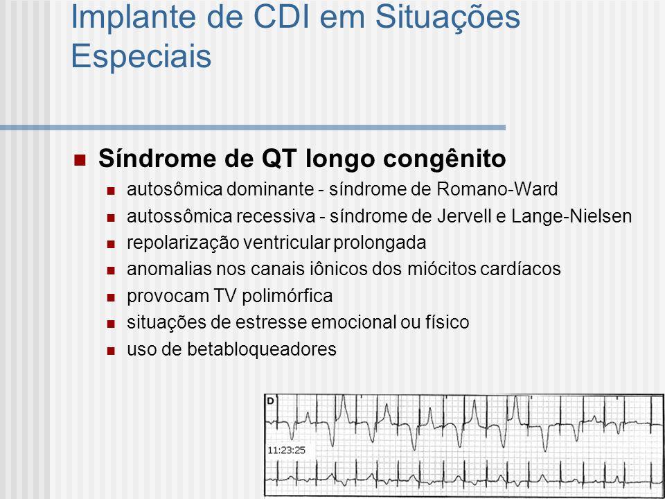 Implante de CDI em Situações Especiais Síndrome de QT longo congênito autosômica dominante - síndrome de Romano-Ward autossômica recessiva - síndrome