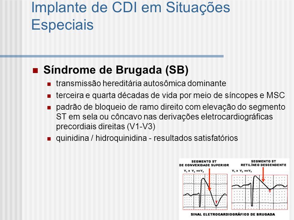 Implante de CDI em Situações Especiais Síndrome de Brugada (SB) transmissão hereditária autosômica dominante terceira e quarta décadas de vida por mei