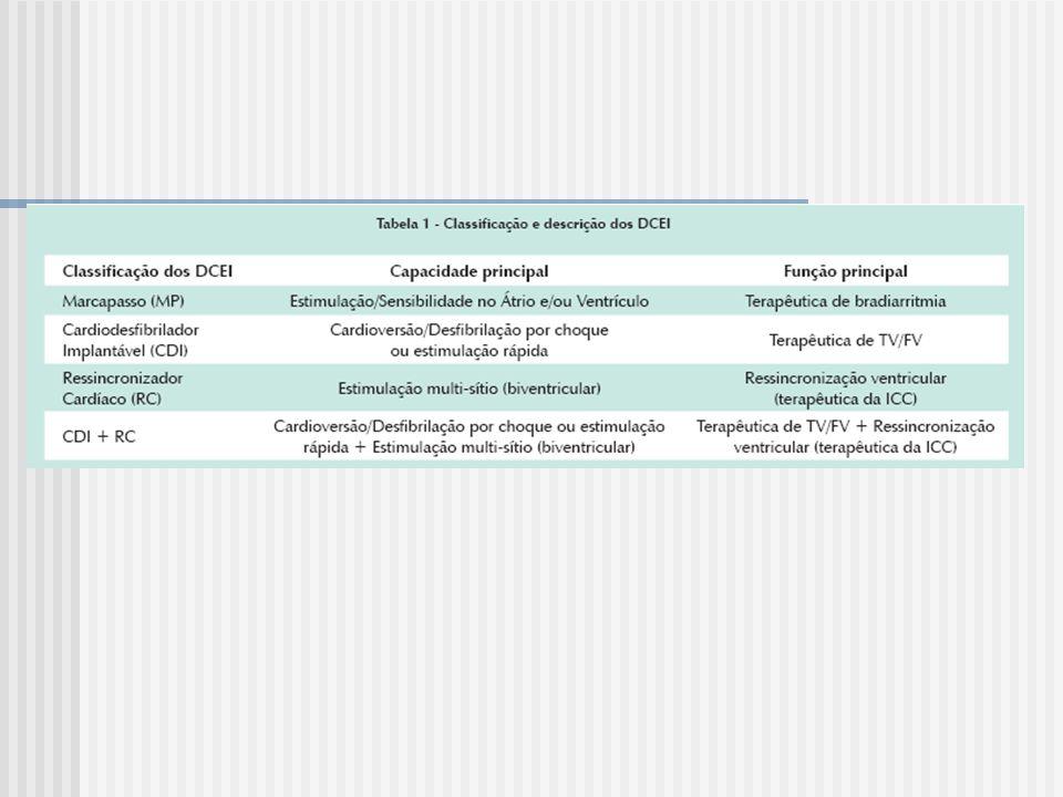 Implante de CDI em Situações Especiais Síndrome de Brugada (SB) transmissão hereditária autosômica dominante terceira e quarta décadas de vida por meio de síncopes e MSC padrão de bloqueio de ramo direito com elevação do segmento ST em sela ou côncavo nas derivações eletrocardiográficas precordiais direitas (V1-V3) quinidina / hidroquinidina - resultados satisfatórios
