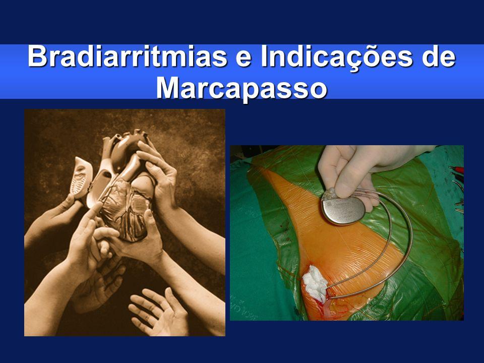Bradiarritmias e Indicações de Marcapasso