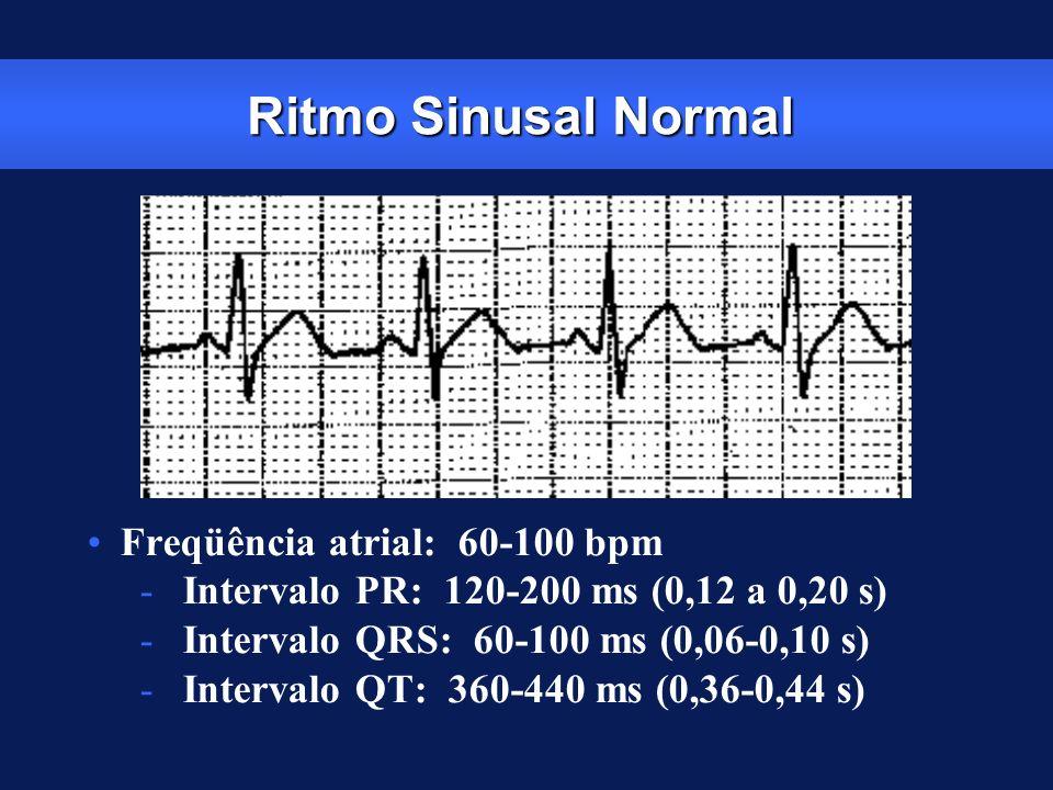 Ritmo Sinusal Normal Freqüência atrial: 60-100 bpm - Intervalo PR: 120-200 ms (0,12 a 0,20 s) - Intervalo QRS: 60-100 ms (0,06-0,10 s) - Intervalo QT: