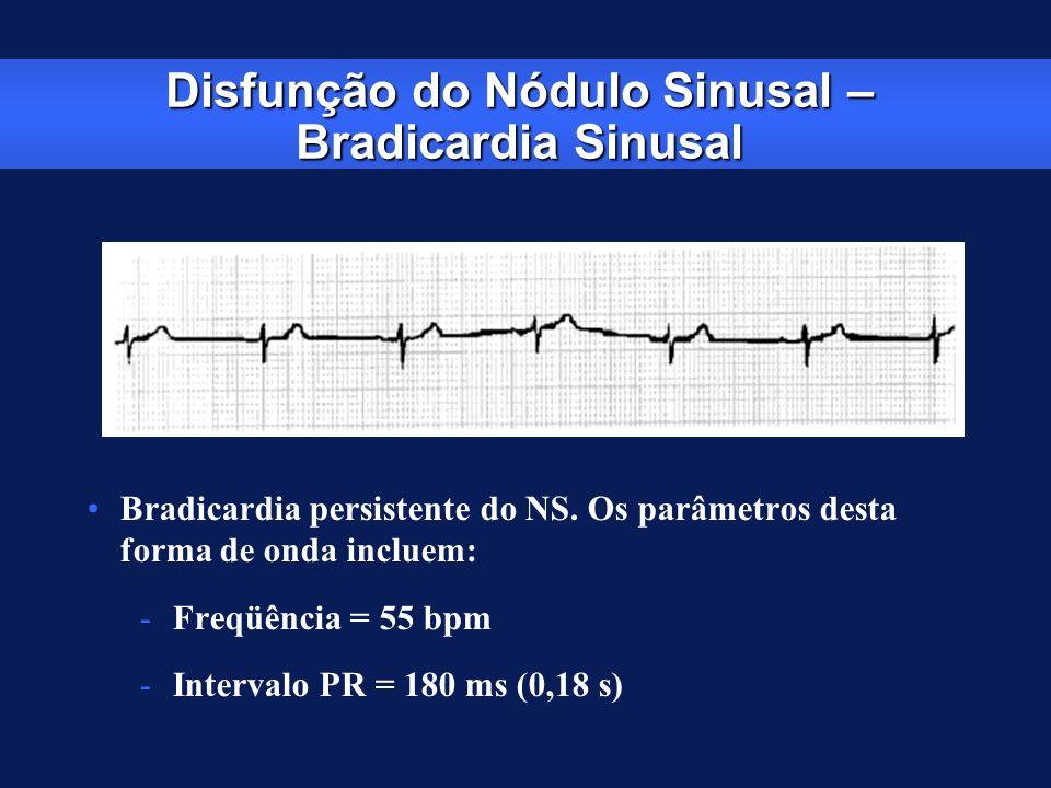 Disfunção do Nódulo Sinusal – Bradicardia Sinusal Bradicardia persistente do NS. Os parâmetros desta forma de onda incluem: -Freqüência = 55 bpm -Inte