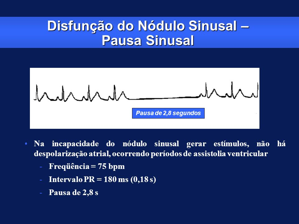 Disfunção do Nódulo Sinusal – Pausa Sinusal Na incapacidade do nódulo sinusal gerar estímulos, não há despolarização atrial, ocorrendo períodos de ass