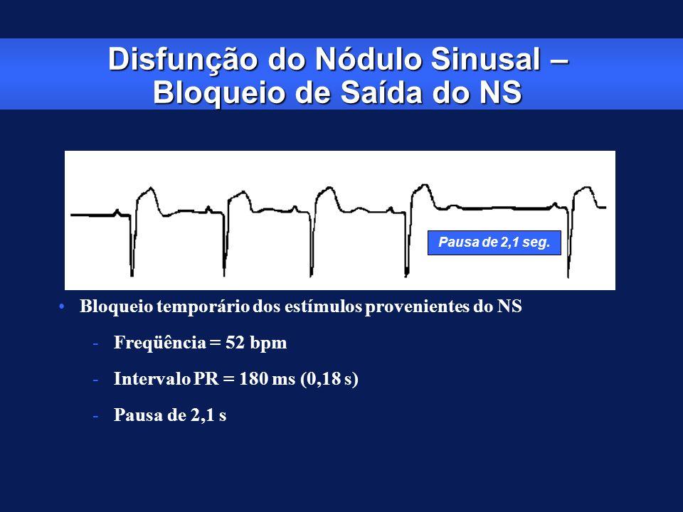 Pausa de 2,1 seg. Disfunção do Nódulo Sinusal – Bloqueio de Saída do NS Bloqueio temporário dos estímulos provenientes do NS -Freqüência = 52 bpm -Int
