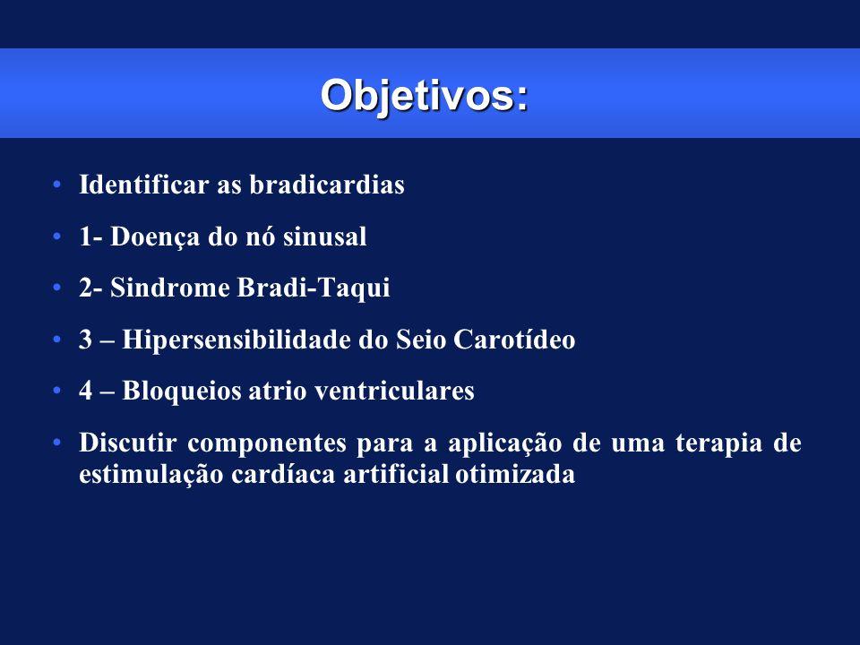 Objetivos: Identificar as bradicardias 1- Doença do nó sinusal 2- Sindrome Bradi-Taqui 3 – Hipersensibilidade do Seio Carotídeo 4 – Bloqueios atrio ve