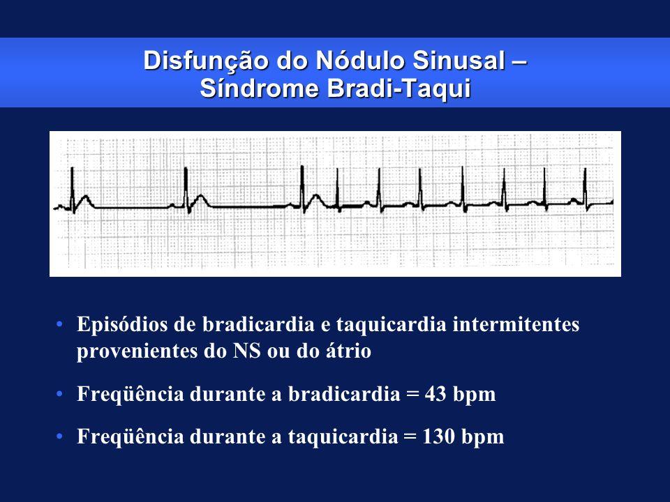 Disfunção do Nódulo Sinusal – Síndrome Bradi-Taqui Episódios de bradicardia e taquicardia intermitentes provenientes do NS ou do átrio Freqüência dura