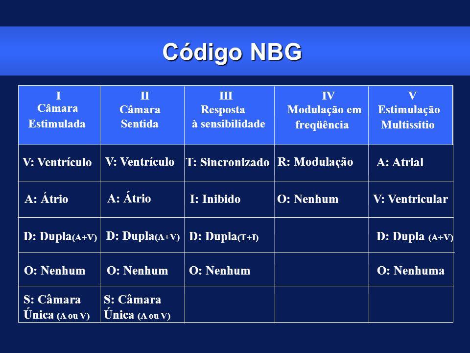 Código NBG I Câmara Estimulada II Câmara Sentida III Resposta à sensibilidade IV Modulação em freqüência V Estimulação Multissítio V: Ventrículo T: Si