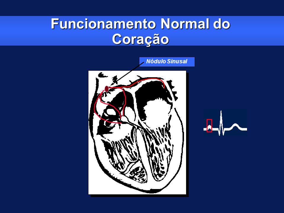 Bloqueio AV de 3 0 Grau ou total (BAVT) Não há condução do impulso do átrio para os ventrículos Freqüência ventricular = 37 bpm -Freqüência atrial = 130 bpm -Intervalo PR = variável