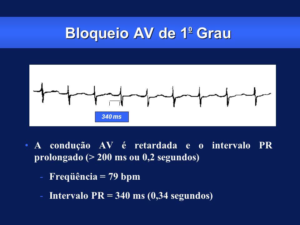 Bloqueio AV de 1 0 Grau A condução AV é retardada e o intervalo PR prolongado (> 200 ms ou 0,2 segundos) -Freqüência = 79 bpm -Intervalo PR = 340 ms (