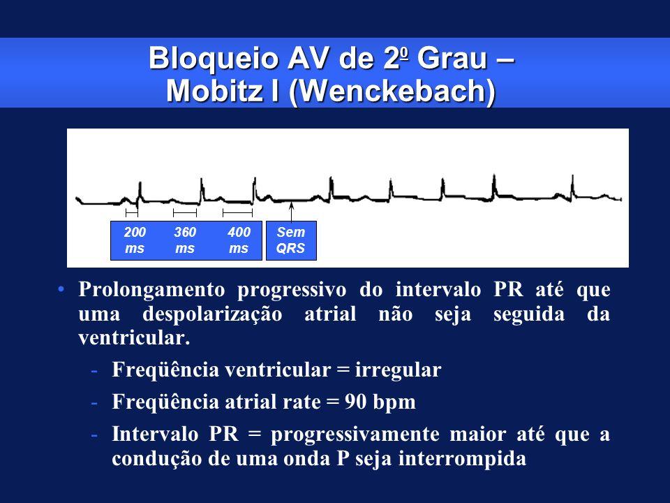 Bloqueio AV de 2 0 Grau – Mobitz I (Wenckebach) Prolongamento progressivo do intervalo PR até que uma despolarização atrial não seja seguida da ventri