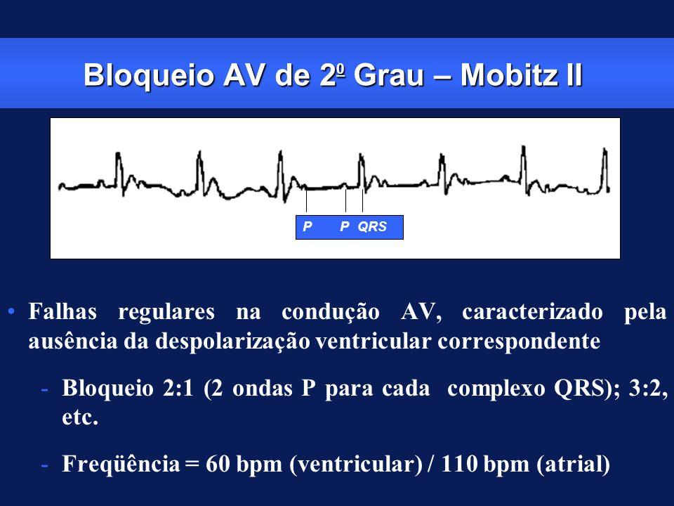 Bloqueio AV de 2 0 Grau – Mobitz II Falhas regulares na condução AV, caracterizado pela ausência da despolarização ventricular correspondente -Bloquei