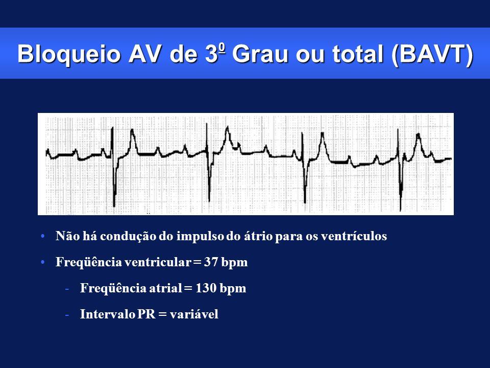 Bloqueio AV de 3 0 Grau ou total (BAVT) Não há condução do impulso do átrio para os ventrículos Freqüência ventricular = 37 bpm -Freqüência atrial = 1