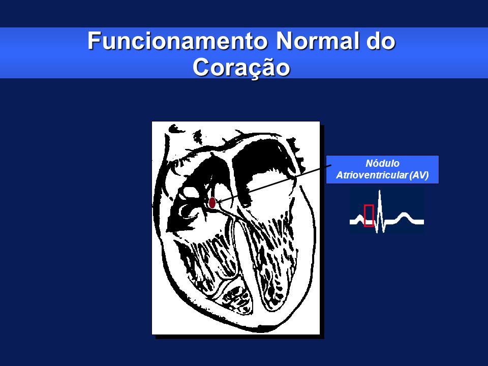 Funcionamento Normal do Coração Nódulo Atrioventricular (AV)