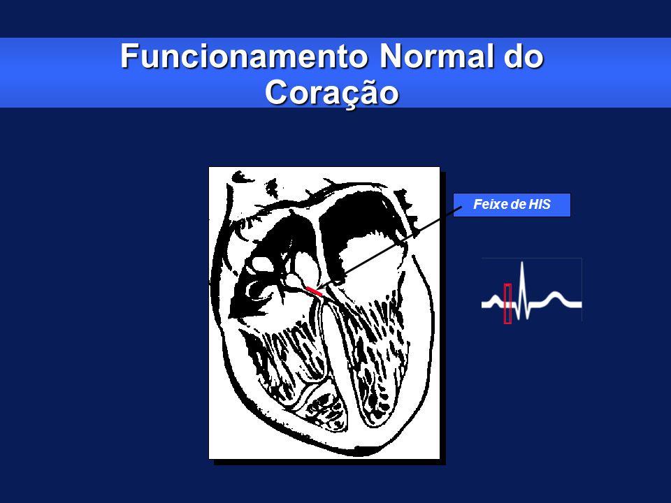 Indicações Classe II: Classe IIa: -BAVT assintomático com freqüência ventricular > 40 bpm, especialmente se houver cardiomegalia ou disfunção de VE -BAV 2 0 grau Tipo II assintomático com QRS estreito -BAV 2 0 grau Tipo I nível intra- ou infra-His assintomático encontrado durante o estudo eletrofisiológico -BAV 1 0 grau com sintomas similares àqueles da síndrome do marcapasso Classe IIb: -BAV 1 0 grau > 300 ms com disfunção no VE e sintomas de ICC cujo encurtamento do intervalo AV propicia melhora hemodinâmica -Patologias neuromusculares tais como distrofia muscular miotônica, síndrome de Kerns-Sayre, Distrofia de Erb e atrofia muscular peroneal com ou sem sintomas devido à provável evolução da doença Bloqueio AV – Indicações JACC 2002 Nov 6; 40 (9): 1703-1719 Circulation 2002 Oct 15; 106 (16): 2145-2161