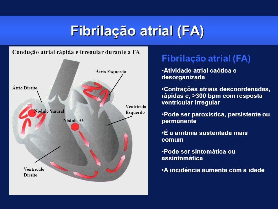 Fibrilação atrial (FA) Atividade atrial caótica e desorganizada Contrações atriais descoordenadas, rápidas e, >300 bpm com resposta ventricular irregu