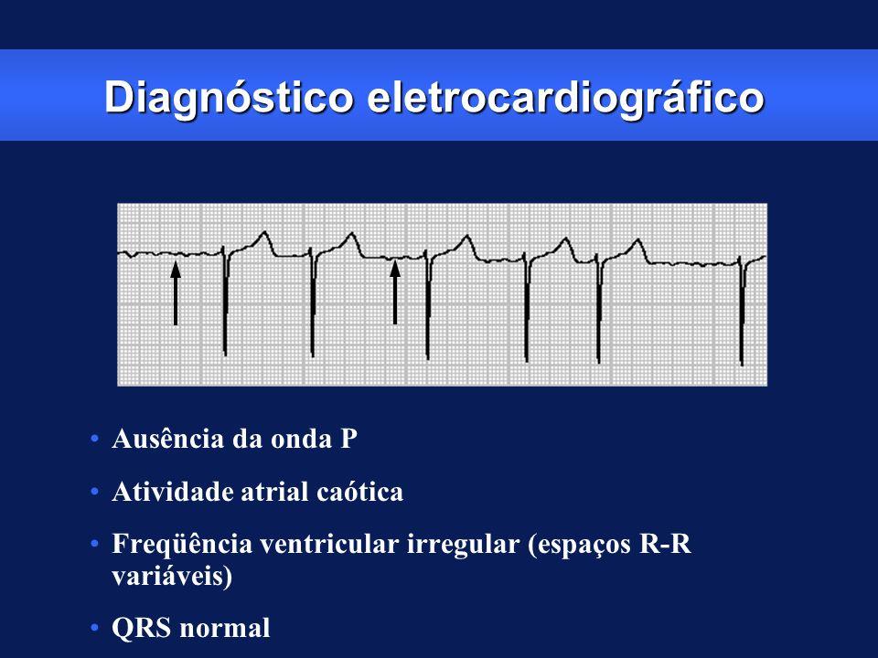Diagnóstico eletrocardiográfico Ausência da onda P Atividade atrial caótica Freqüência ventricular irregular (espaços R-R variáveis) QRS normal