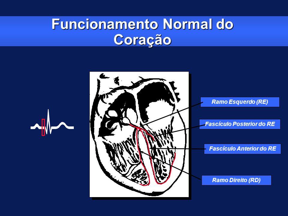 Ramo Esquerdo (RE) Fascículo Posterior do RE Fascículo Anterior do RE Ramo Direito (RD)